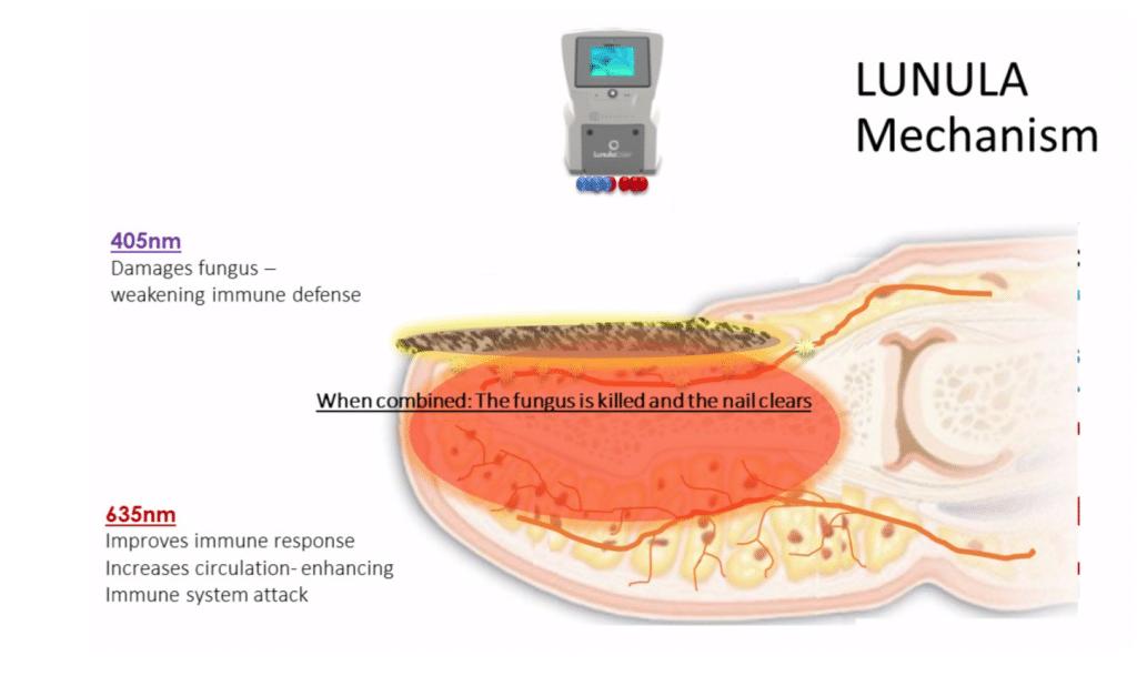 Lunula Laser Webinar
